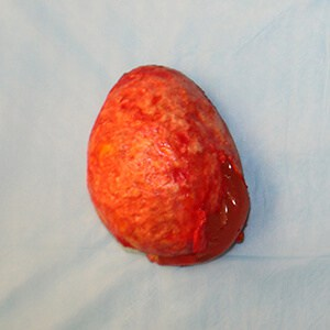Removal of silicone implant