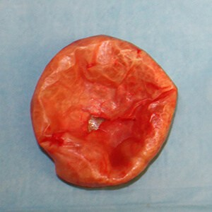 Removal of encapsulated implant
