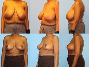 Before & after breast reduction surgery