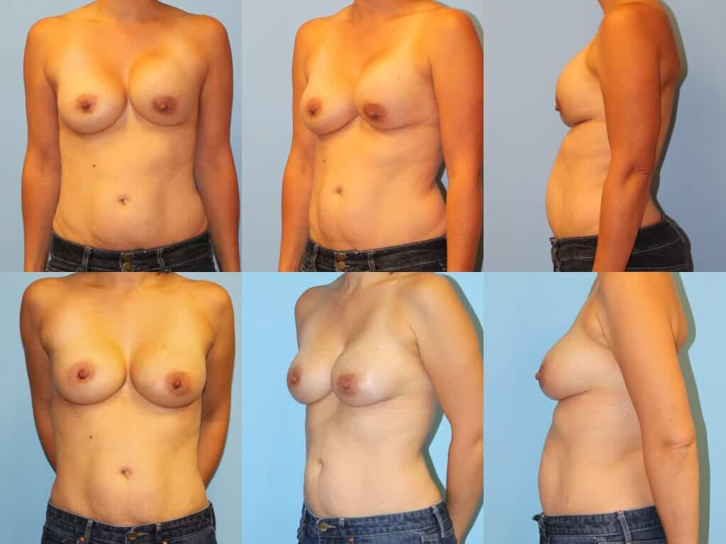 Before & after breast augmentation complications surgery