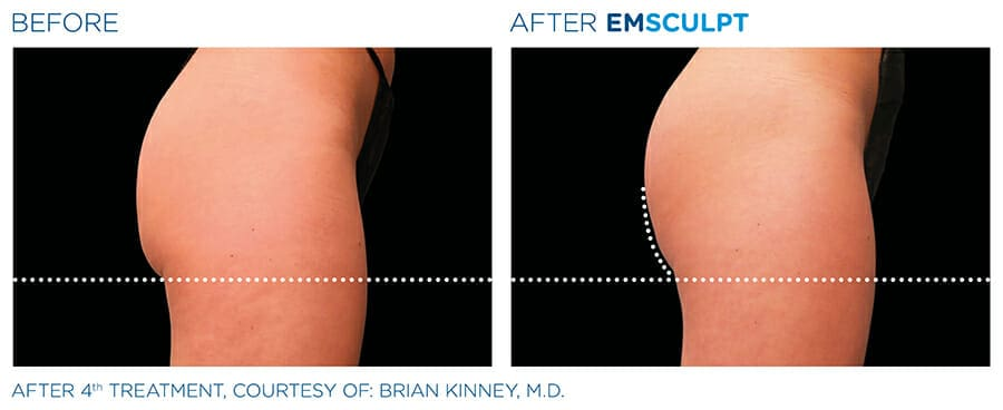 Body slimming before & after Westchester County